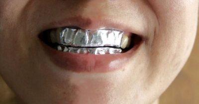 Только взгляните, что произойдет, если обернуть зубы в обычную фольгу