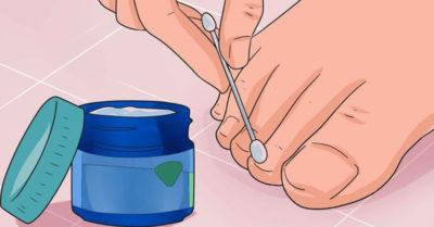 Эти 6 мощных средств устранят даже самый запущенный грибок ногтей!