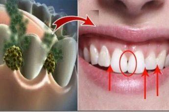 Ликвидируем плохое дыхание за 5 минут! Это средство убьет все бактерии, которые вызывают эту проблему!