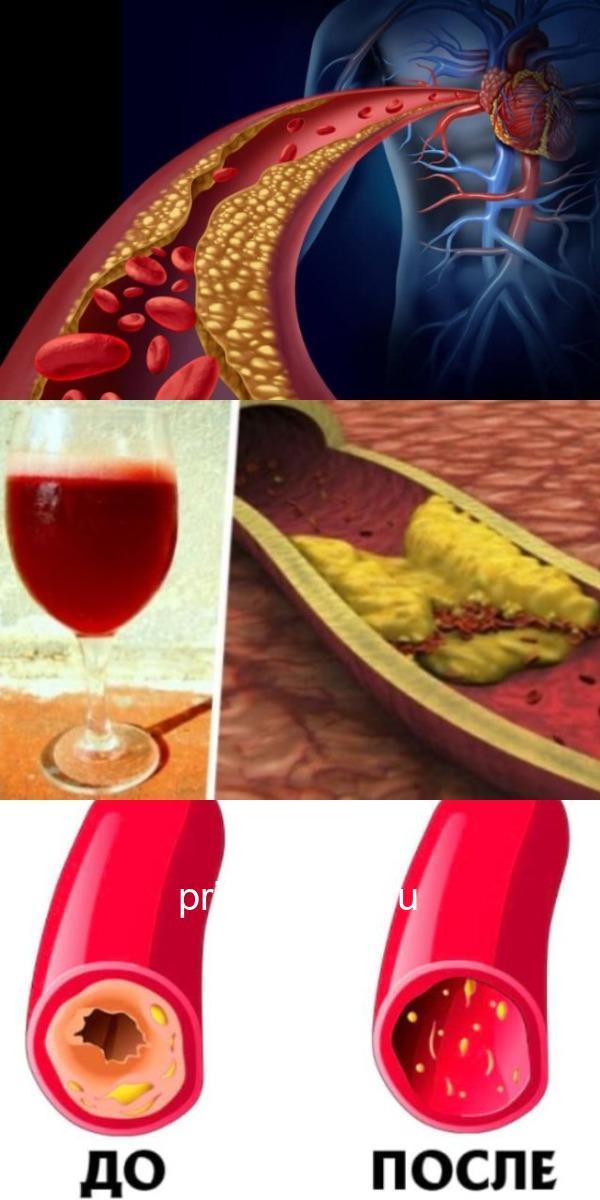 Чистим сосуды и кровь: рецепт семь стаканов