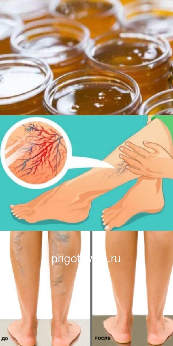 Мед вылечил варикоз и трофические язвы на ногах: главное, знать как применять